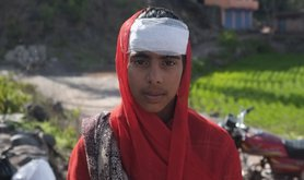 Hifsa, 13, injured by shelling in Kashmir