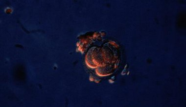 Four-cell human embryo. Wellcome Images. All rights reserved.