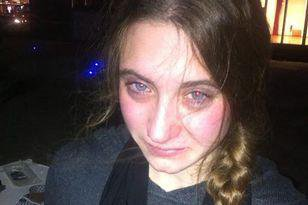 AshDoyle14-image-taken-after-pepper-spray-used-on-protesters.jpg