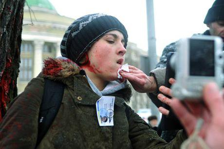 Journalist after an attack by pro-Russia activists in Donetsk. Photo courtesy of the author.