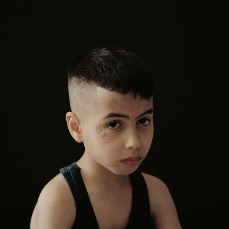 Portrait of a Palestinian boy who was shot by a sponge-tipped bullet when he was five years old