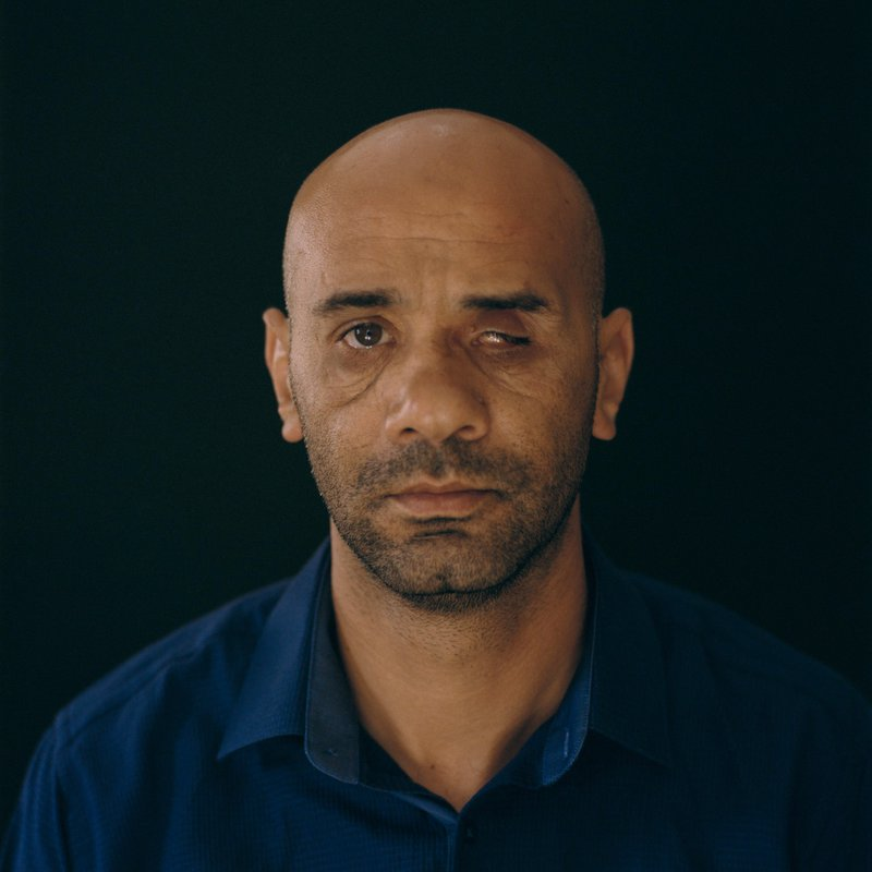 Portrait of a Palestinian man who lost his left eye and was left with fractures to his face from a sponge-tipped bulllet