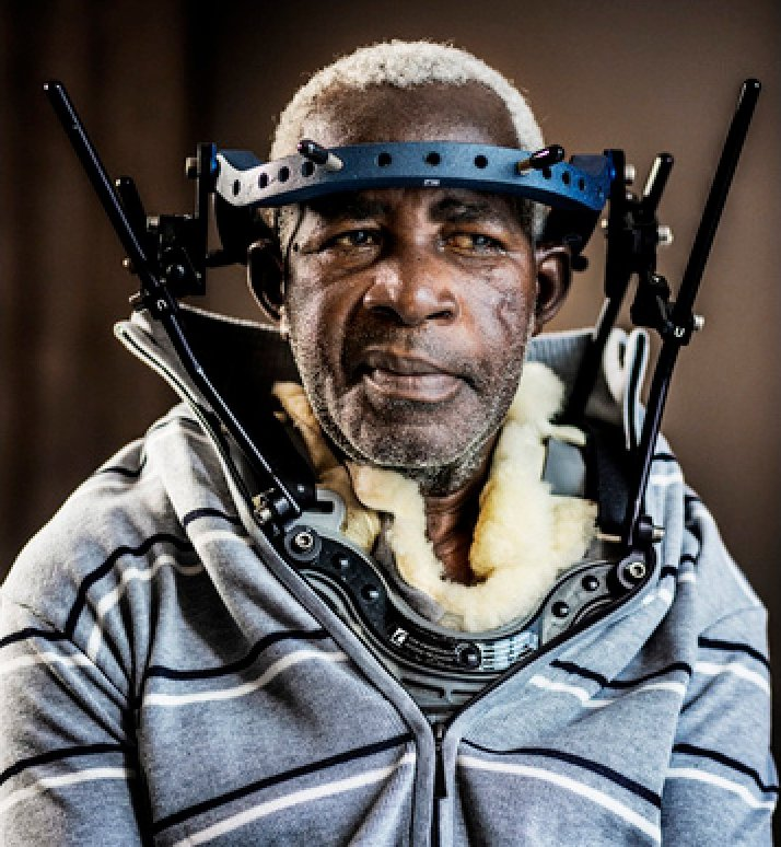 Pierre-Claver Mbonimpa after his operation in Brussels