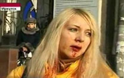 Anna Shavenkova, daughter of an important regional official, escaped the accident with minor injuries.